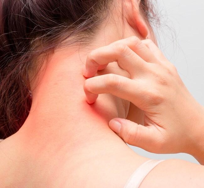 alergia en la piel