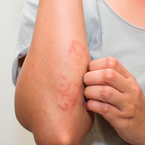 ejemplo gráfico de eczema en la piel
