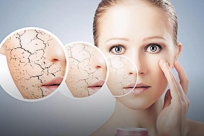Tratamientos que existen para combatir la dermatitis perioral